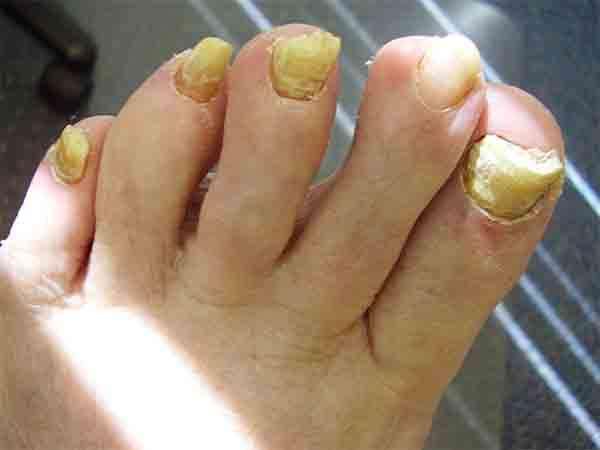 ногтевой грибок на ногах