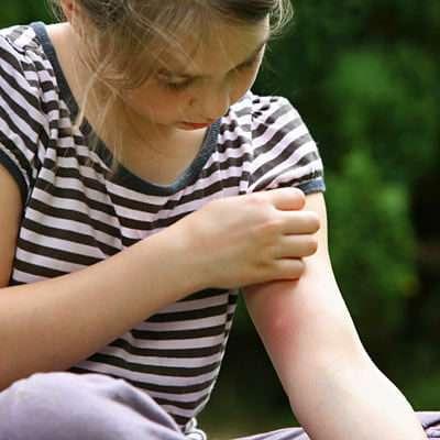 зуд после укуса комара
