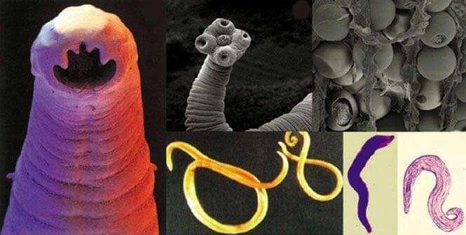 паразиты внутри нас